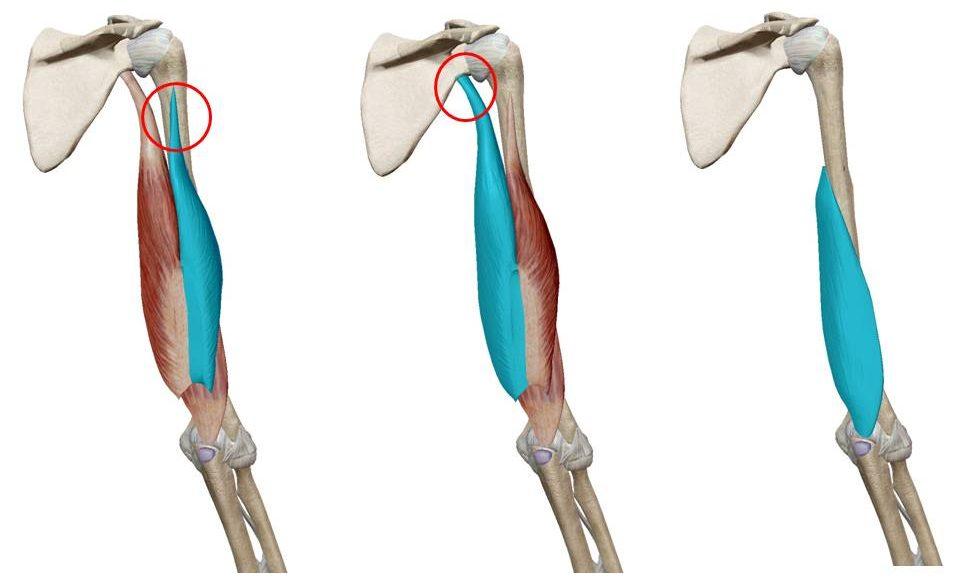 上腕三頭筋ストレッチ|解剖